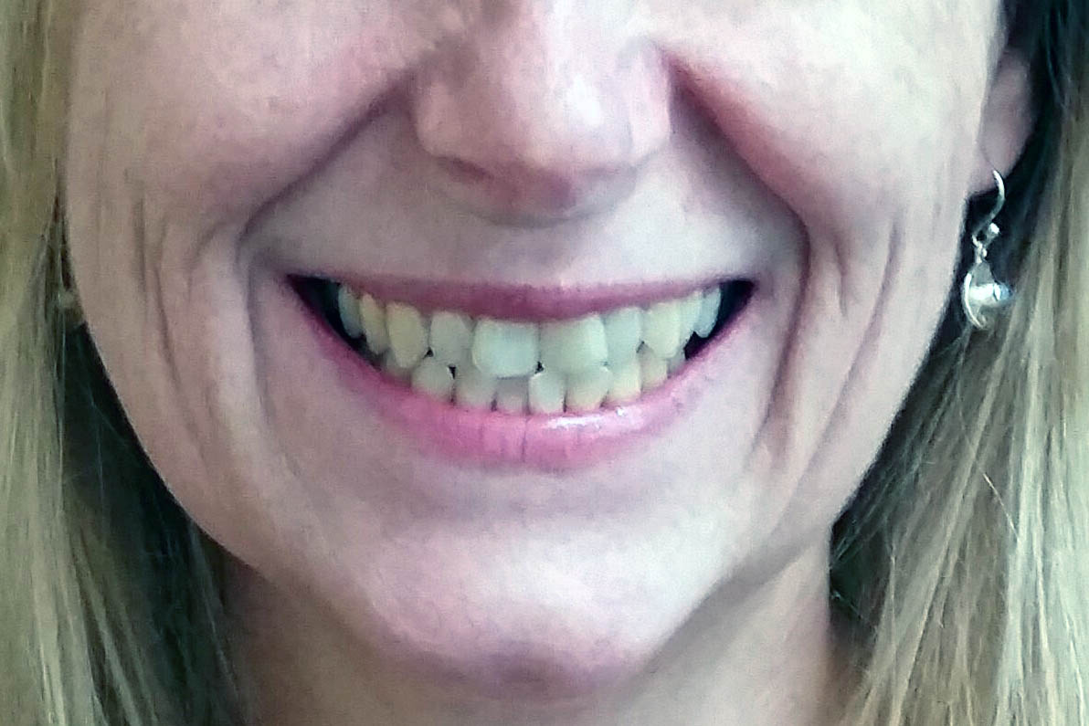 Clear Braces for Straight Teeth at Dentistry on the Clyde